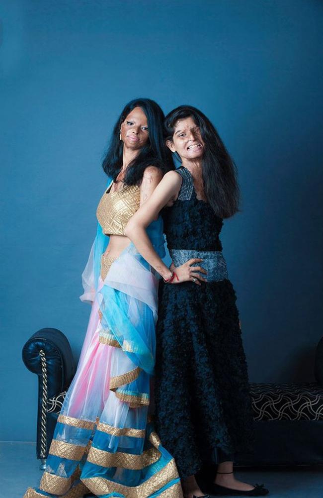 Inspirational Photos Show Acid Attack Survivors' Beauty 2
