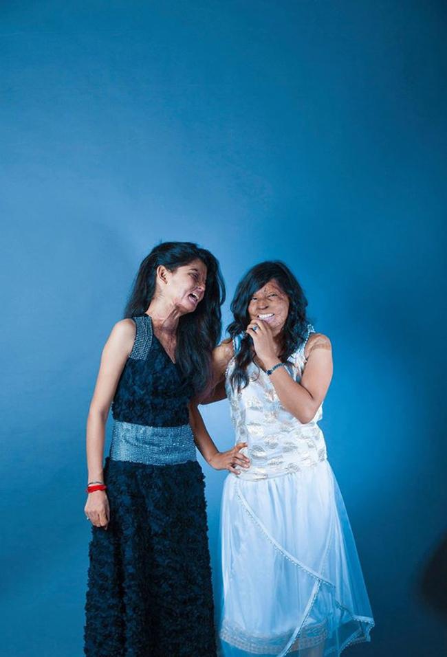 Inspirational Photos Show Acid Attack Survivors' Beauty 5