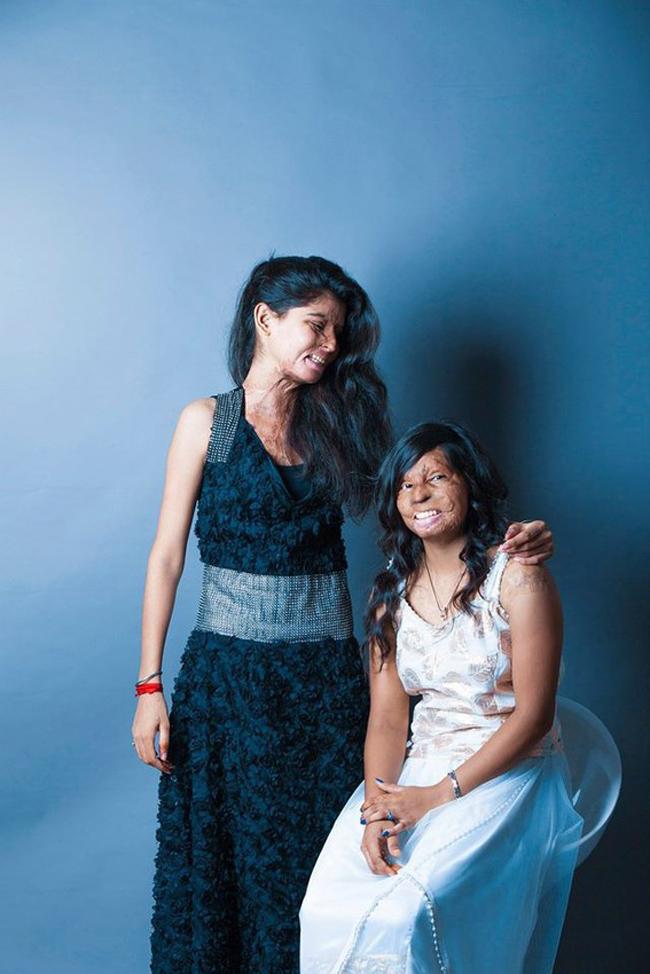 Inspirational Photos Show Acid Attack Survivors' Beauty 12