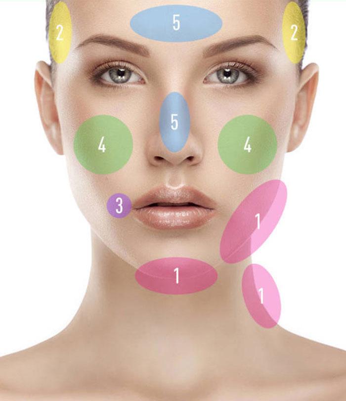 經常長痘痘?讓臉上的痘痘告訴你身體哪裡出了問題 3